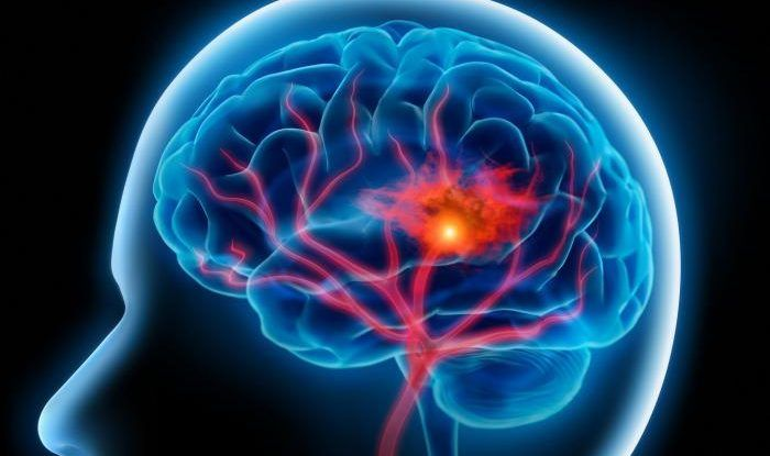 бред и галлюцинации при шизофрении